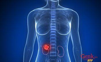 Phương pháp điều trị ung thư thận theo từng giai đoạn