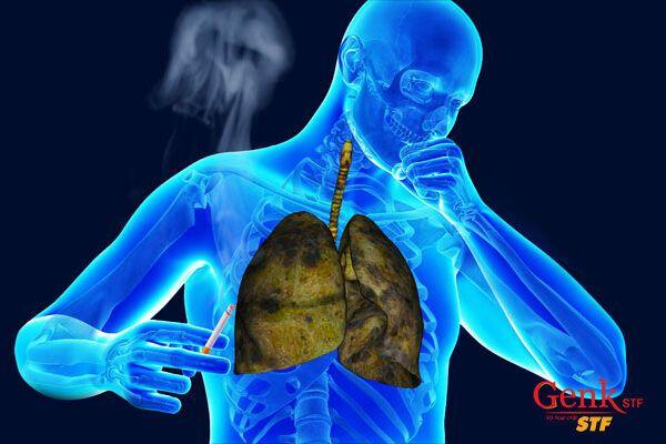 Ho dai dẳng là dấu hiệu cảnh báo ung thư phổi