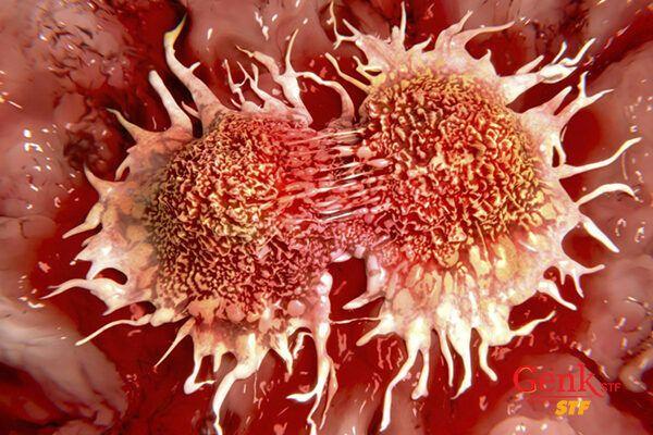 Ung thư là việc các tế bào phát triển bất thường, không kiểm soát