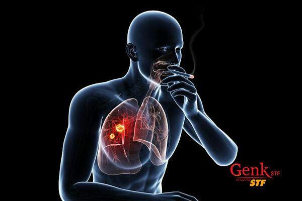 Thuốc lá là nguyên nhân gây ra 22% các trường hợp ung thư