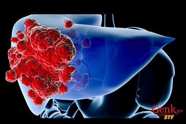 Ung thư gan tiến triển sẽ lan đến các hạch bạch huyết hoặc đến các cơ quan khác