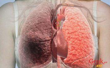 Các phương pháp điều trị ung thư gan theo từng giai đoạn