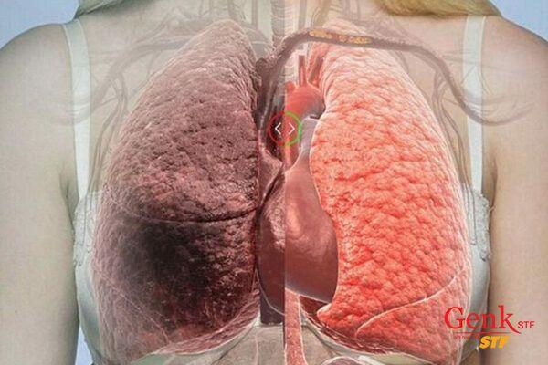 Dựa trên các triệu chứng ung thư gan, bạn sẽ được bác sĩ chỉ định các xét nghiệm sàng lọc để đưa ra phương pháp điều trị thích hợp.