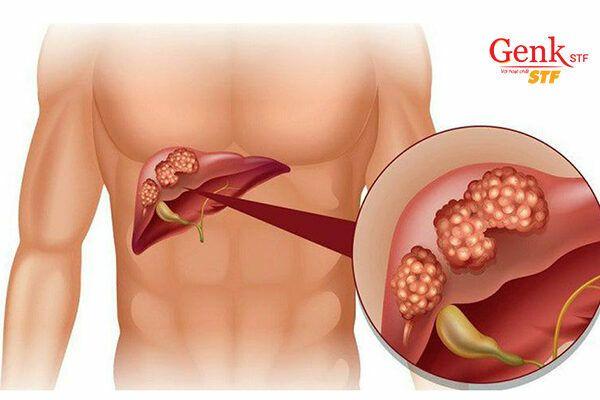 Nhiều khối u trong gan khiến việc phẫu thuật trở nên khó khăn