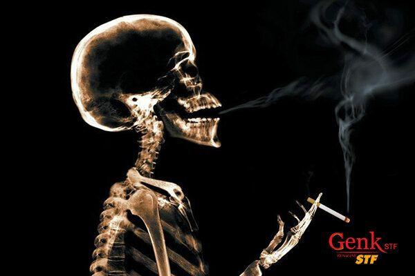 Hút thuốc là nguyên nhân gây ra rất nhiều ung thư, trong đó có ung thư bàng quang