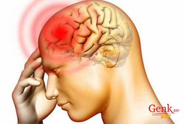 Ung thư não là loại ung thư cực kì nguy hiểm, dễ gây tử vong
