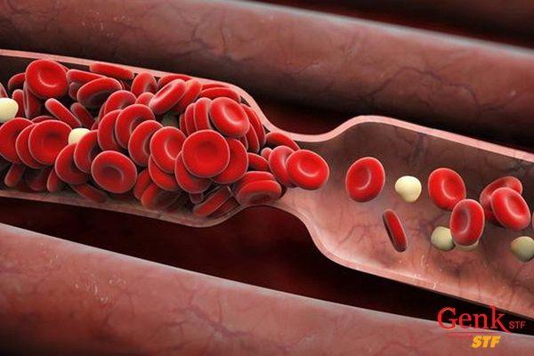 Bên cạnh việc hỗ trợ điều trị ung thư, Fucoidan còn được sử dụng như một chất chống đông máu