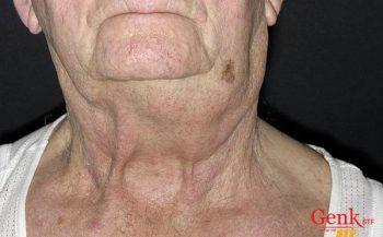 Hiểu về ung thư hạch không Hodgkin – Chẩn đoán & điều trị