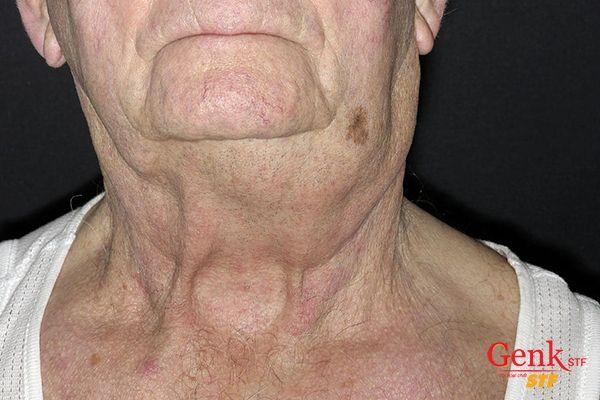 Hình ảnh hạch bạch huyết mở rộng ở cổ của một bệnh nhân mắc ung thư hạch không Hodgkin.
