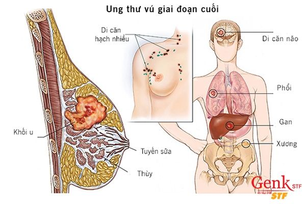 phuong-phap-dieu-tri-cac-trieu-chung-cua-ung-thu-vu-di-can (2)