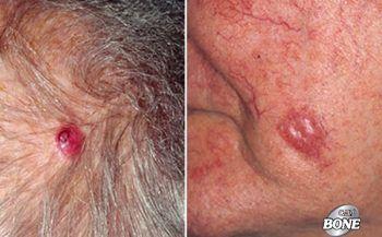 Dấu hiệu, triệu chứng của các loại ung thư da