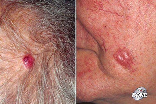 Dấu hiệu khối u ác tính của ung thư da