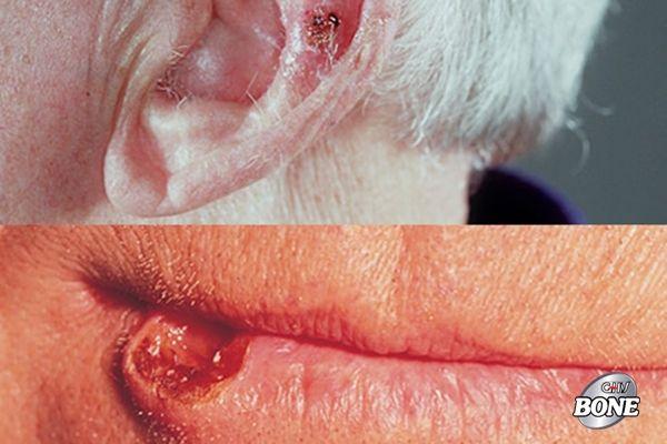 Ung thư biểu mô tế bào vảy của da thường xuất hiện ở mặt, tai và tay của bạn
