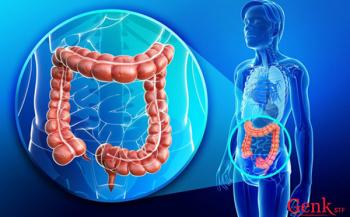 Ung thư ruột phòng ngừa bằng cách nào?