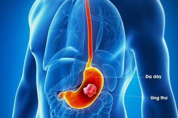 Ung thư dạ dày là một trong những ung thư phổ biến trên thế giới