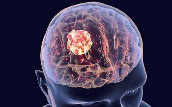 Những điều cần biết về ung thư não