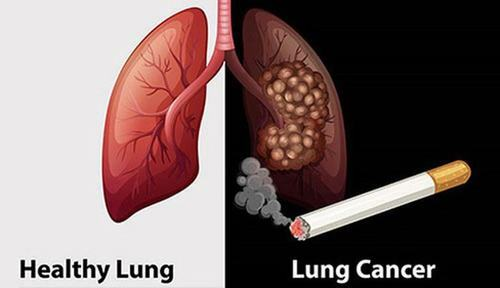 Có khoảng 90% người bệnh ung thư phổi tại Việt Nam có hút thuốc lá.