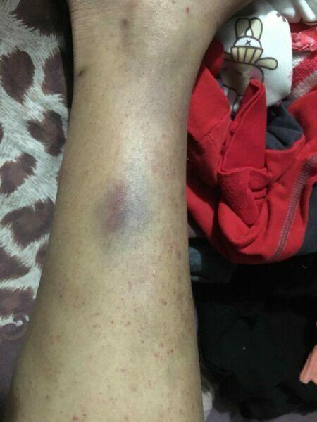 Các vết bầm tím trên cơ thể Trang