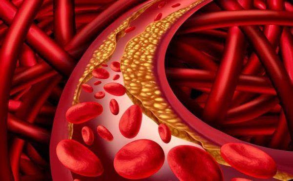 Tình trạng mỡ máu cao có thể được phát hiện thông qua xét nghiệm các chỉ số mỡ máu