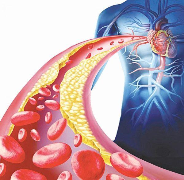 Mỡ máu cao là nguyên nhân chính dẫn đến các biến chứng về bệnh tim mạch, đột quỵ