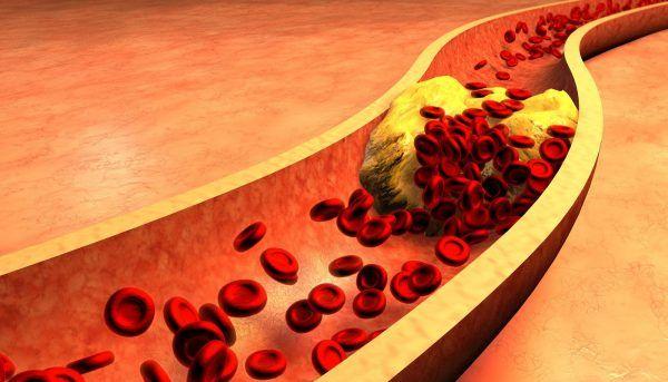Mỡ máu cao là nguy cơ dẫn đến tai biến mạch máu não, đột quỵ