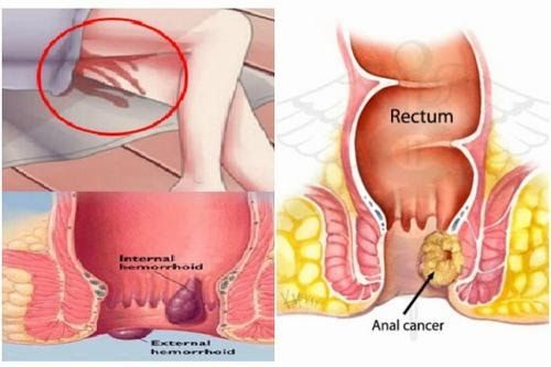 Ung thư hậu môn rất nguy hiểm nên cần phải phát hiện và điều trị sớm