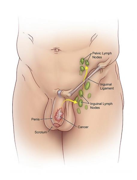 Ung thư dương vật xảy ra trên da của dương vật hoặc trong dương vật