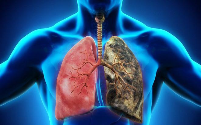 Ung thư phổi là căn bệnh nguy hiểm, tỷ lệ tử vong cao