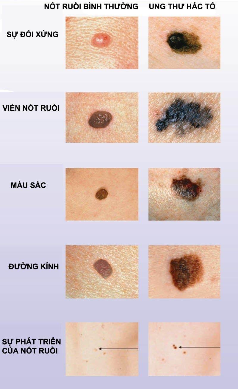 Phân biệt giữa nốt ruồi bình thường và dấu hiệu ung thư hắc tố