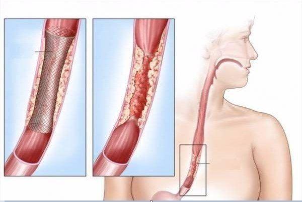 Ung thư thực quản là khối u ác tính xuất hiện phát sinh từ thực quản