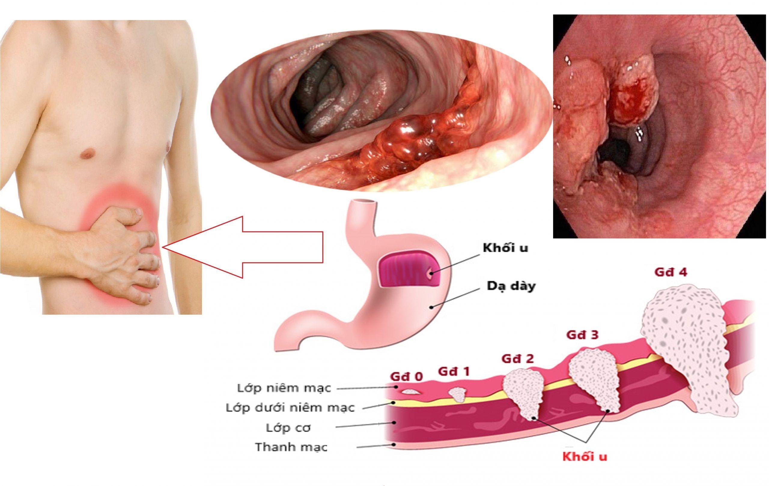 Truyền hóa chất điều trị ung thư dạ dày giai đoạn cuối