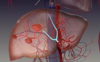 Các phương pháp điều trị ung thư gan phổ biến nhất hiện nay