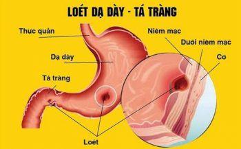 Điều trị viêm loét dạ dày tá tràng bằng phương pháp nào