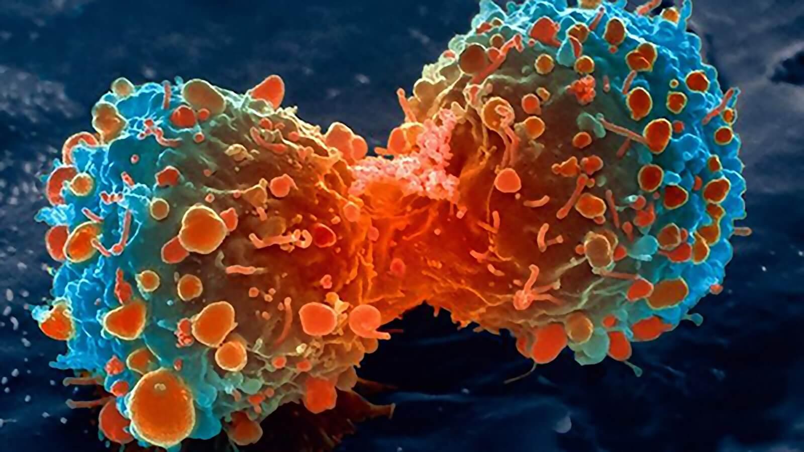 Ung thư là sự rối loạn sinh sản, tăng trưởng và hoạt động chức năng tế bào