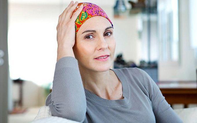 Rụng tóc là tác dụng phụ thường gặp ở những người điều trị bằng hóa chất