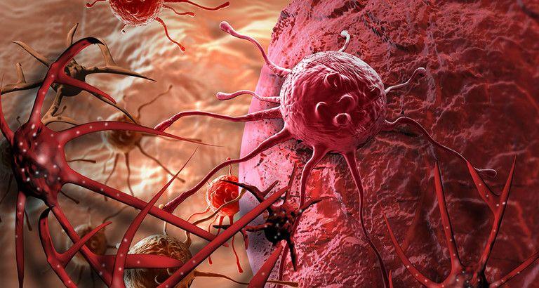 Các tế bào ung thư hình thành và phát triển ở dạng khối hoặc dạng lỏng trong các hệ cơ quan.