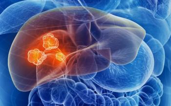 Cảnh báo các triệu chứng ung thư gan