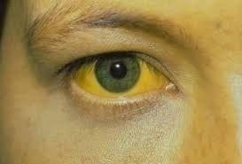 Vàng da là một trong những triệu chứng ung thư gan điển hình