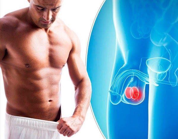 Khối u ác tính xuất hiện ở tinh hoàn của nam giới gây ra bệnh ung thư tinh hoàn