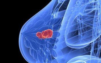 Triệu chứng của ung thư vú khi ở giai đoạn 3