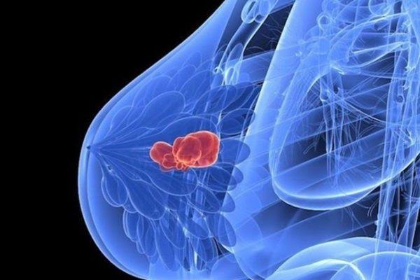 Ở giai đoạn này, khối u có kích cỡ khoảng 5cm