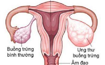 Ung thư buồng trứng có chữa khỏi không? Có phương pháp điều trị nào?