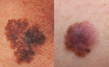 Bệnh ung thư da có chữa được không?