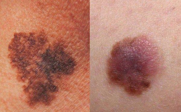 Những triệu chứng của bệnh ung thư da rất dễ gây nhầm lẫn với những bệnh ngoài da thường gặp
