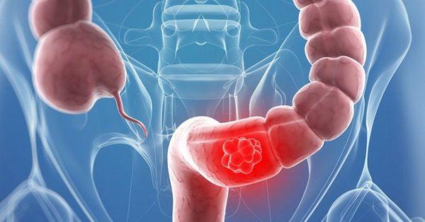 Ung thư đại tràng bắt nguồn từ các mô đại tràng