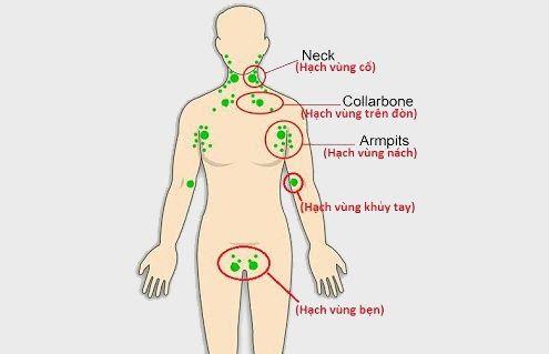 Hạch bạch huyết còn gọi là hạch lympho nằm rải rác ở mạch bạch huyết và là một phần của hệ bạch huyết