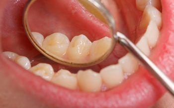 Những điều cần biết về ung thư khoang miệng