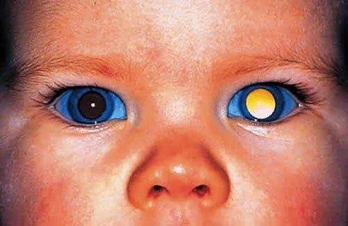 Sự bất thường ở nhiễm sắc thể 13 cũng là yếu tố gây ung thư mắt