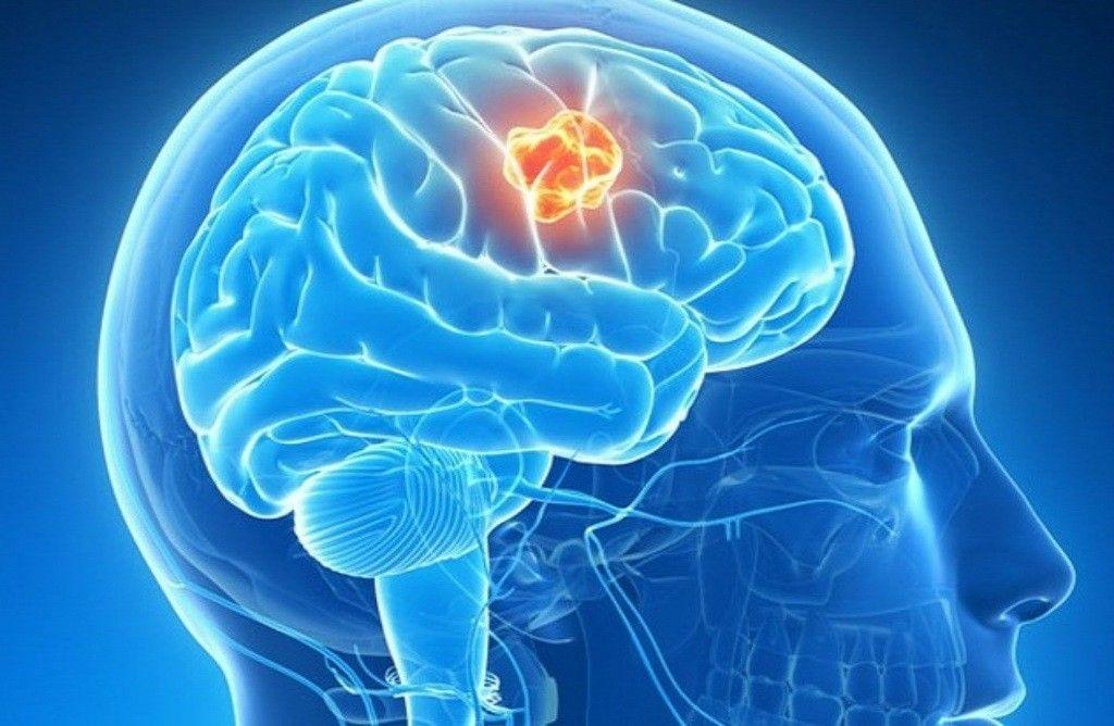 Ung thư não và triệu chứng của nó có thể bị hiểu nhầm là đau đầu bình thường khiến người bệnh chủ quan