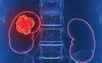 Tìm hiểu về ung thư thận di căn